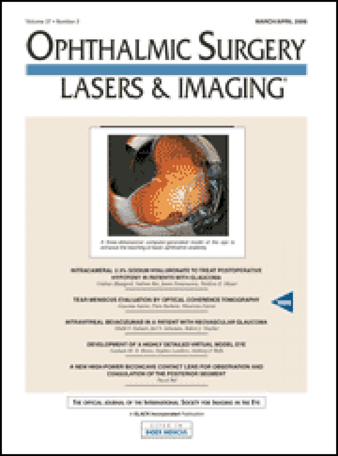 Tear meniscus evaluation by optical coherence tomography