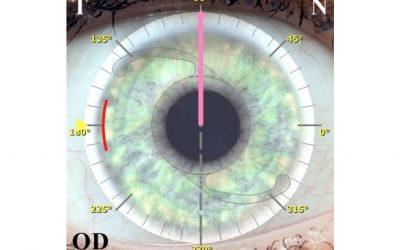 L'edema del disco ottico