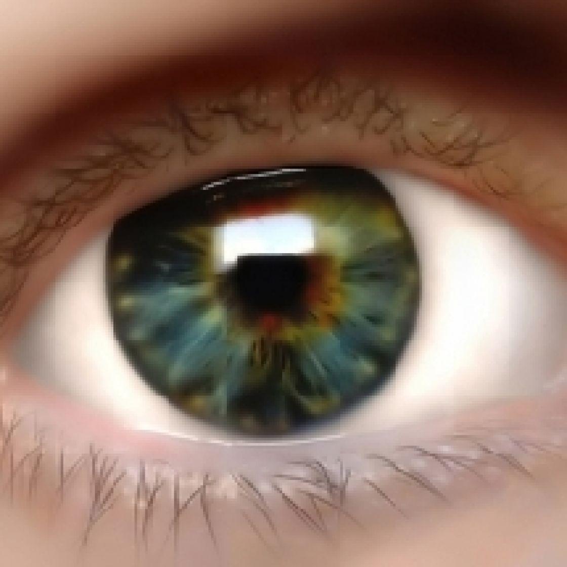 Peripapillary detachment in pathologic myopia: unusual findings