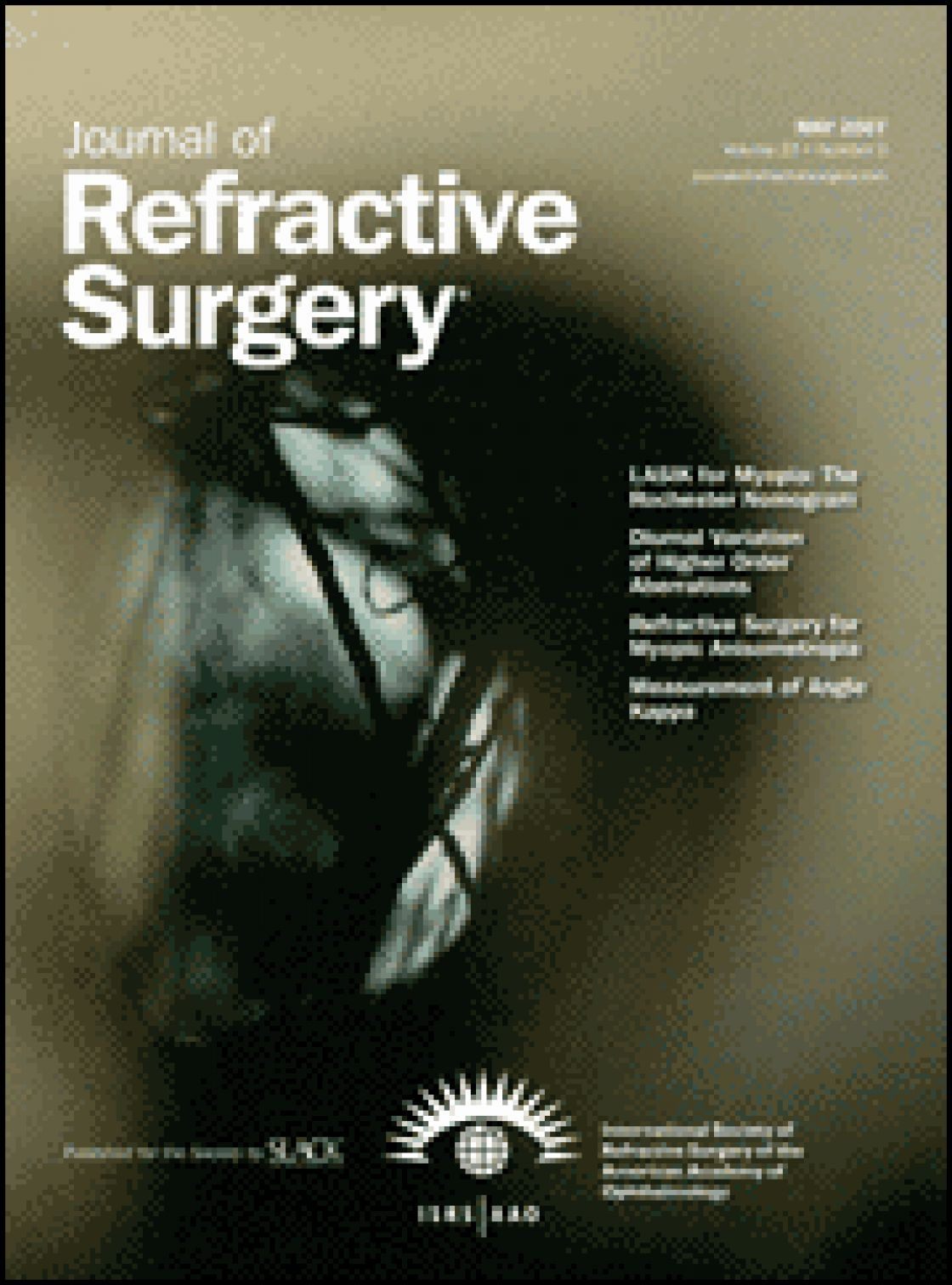 Correlation between attempted correction and keratometric index of the cornea after myopic excimer laser surgery