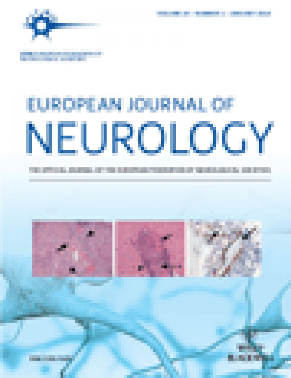 Loss of temporal retinal nerve fibers in Parkinson disease: a mitochondrial pattern?