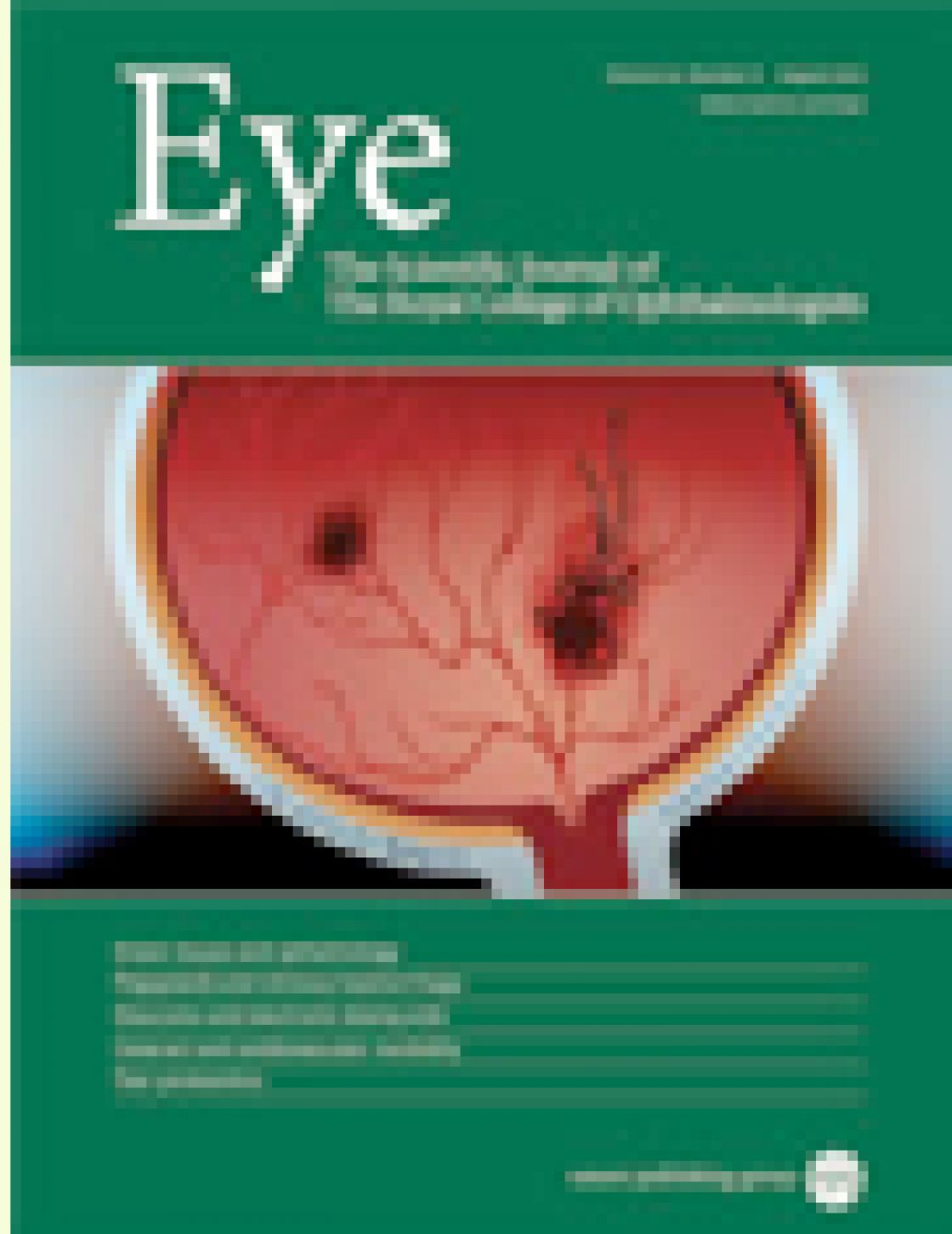 The effect of pupil dilation on retinal nerve fiber layer thickness measurements and their repeatability with Cirrus HD-OCT