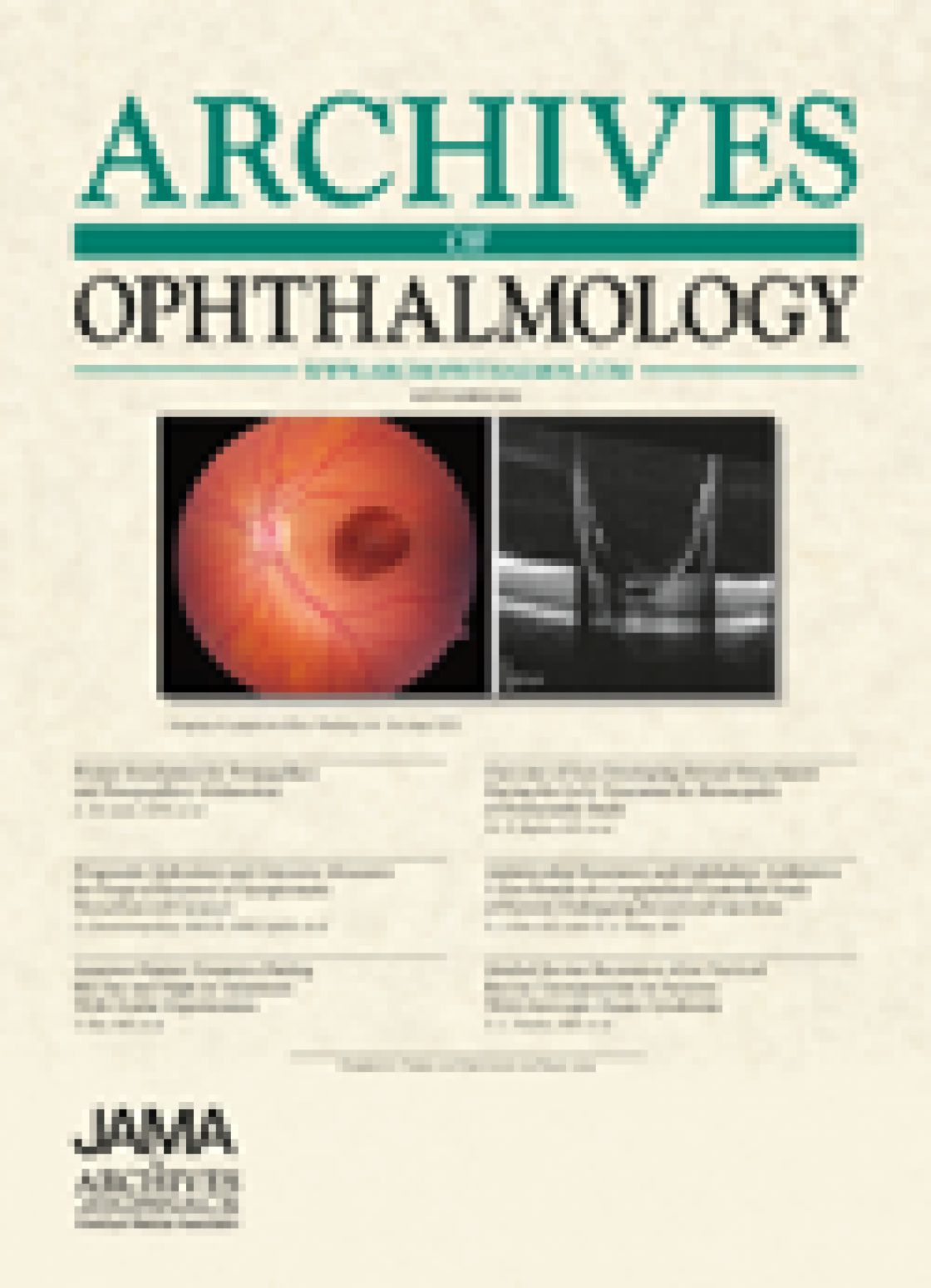 Optical coherence tomography for optic disc edema