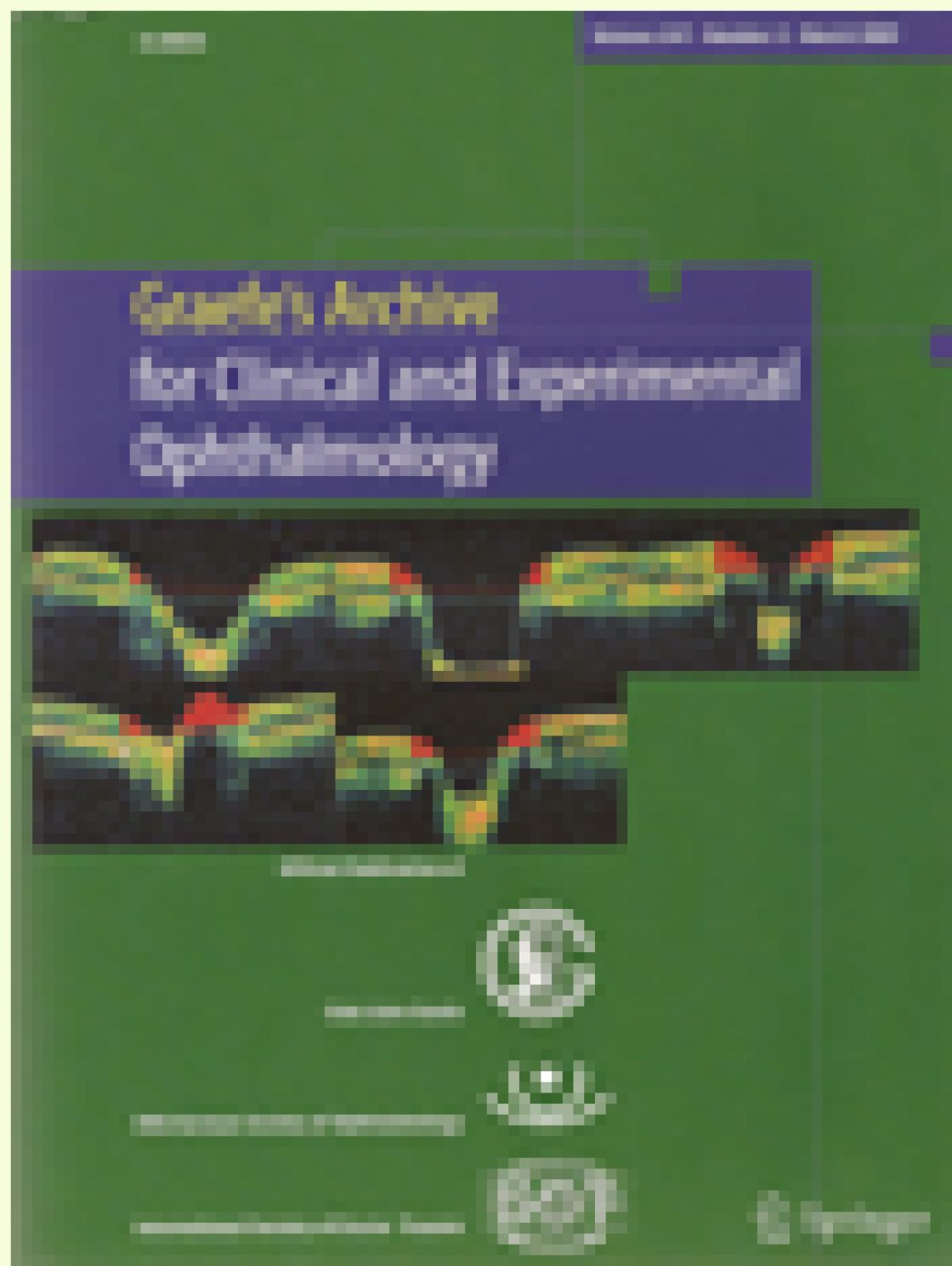 Agreement between optical coherence tomography and digital stereophotography in vertical cup-to-disc ratio measurement
