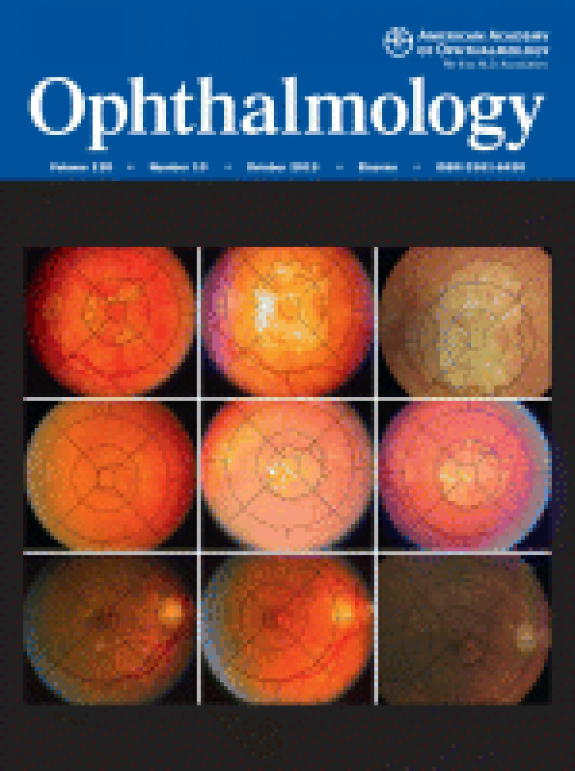 A comparison between Scheimpflug imaging and optical coherence tomography in measuring corneal thickness