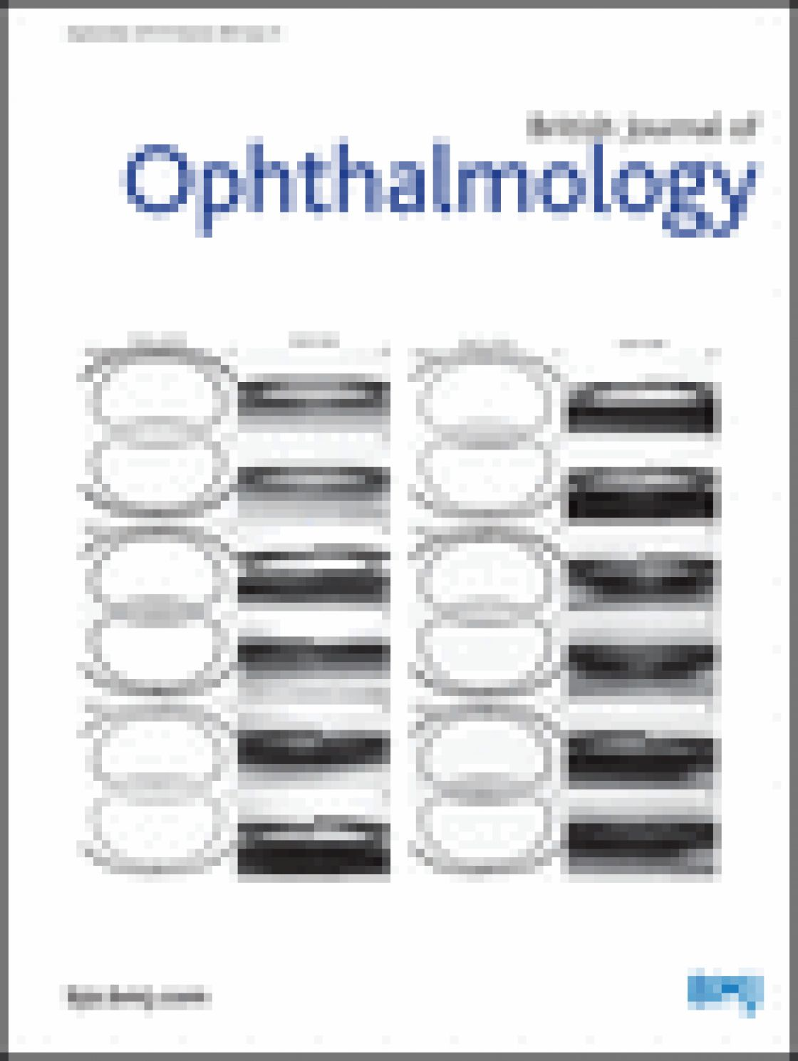 Evaluation of a new optical biometry device for measurement of ocular components and its comparison with IOLMaster