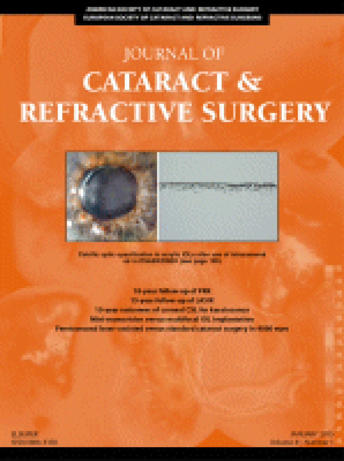 Comparison of anterior segment measurements with Scheimpflug/Placido photography-based topography system and IOLMaster partial coherence interferometry in patients with cataracts.