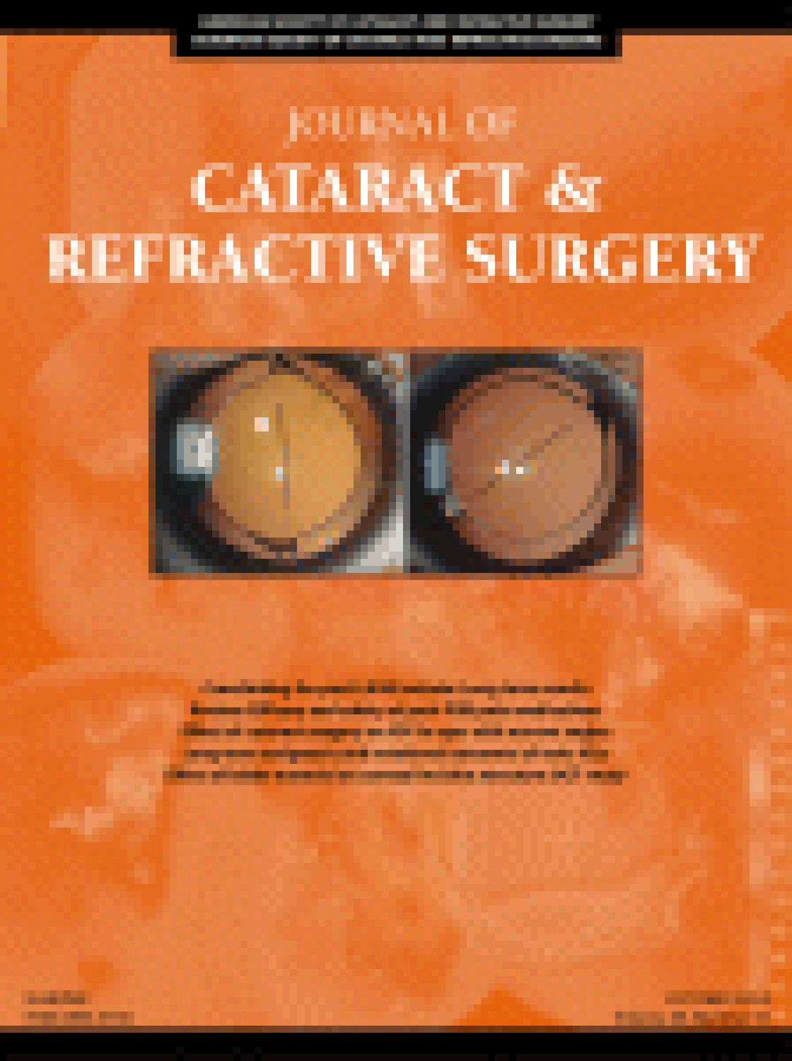 Influence of posterior corneal astigmatism on total corneal astigmatism in eyes with moderate-to-high astigmatism