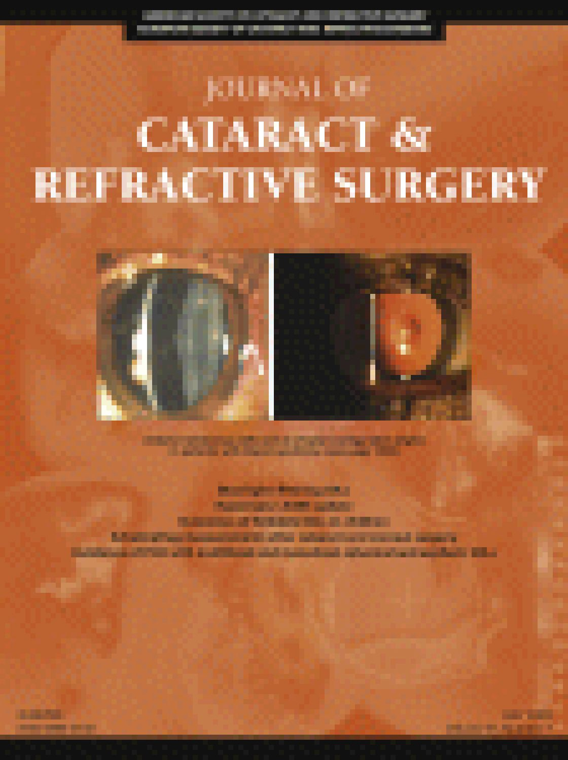 Accuracy of Scheimpflug corneal power measurements for intraocular lens power calculation