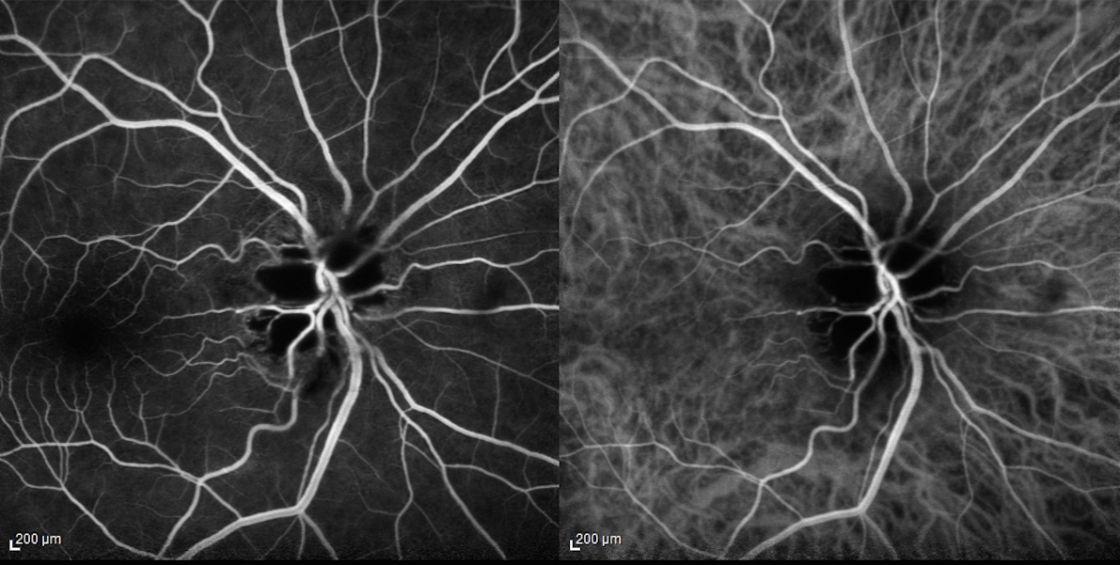 Fluorangiografia e angiografia al verde di indocianina